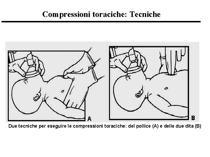 Compressioni toraciche: Tecniche Due tecniche per eseguire le compressioni toraciche: del pollice (A) e