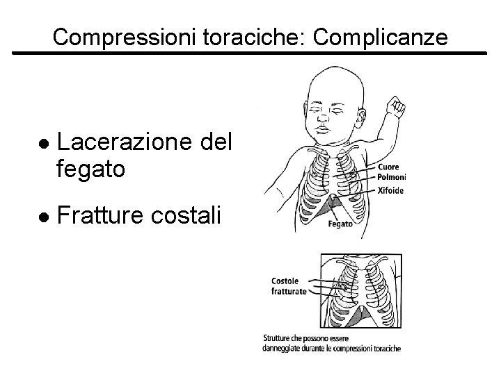 Compressioni toraciche: Complicanze l Lacerazione del fegato l Fratture costali