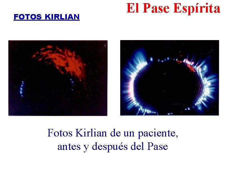 FOTOS KIRLIAN El Pase Espírita Fotos Kirlian de un paciente, antes y después del