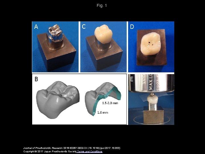 Fig. 1 Journal of Prosthodontic Research 2018 62287 -292 DOI: (10. 1016/j. jpor. 2017.