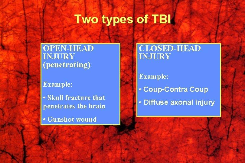 Head injury of types Head injury