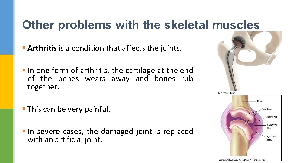Other problems with the skeletal muscles § Arthritis is a condition that affects the
