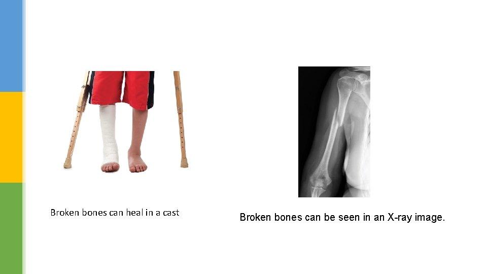 Broken bones can heal in a cast Broken bones can be seen in an