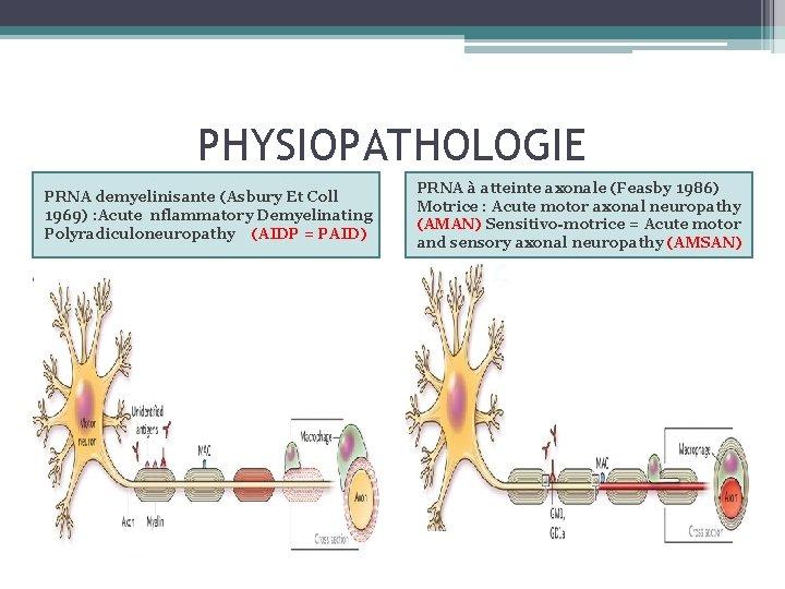 PHYSIOPATHOLOGIE PRNA demyelinisante (Asbury Et Coll 1969) : Acute nflammatory Demyelinating Polyradiculoneuropathy (AIDP =