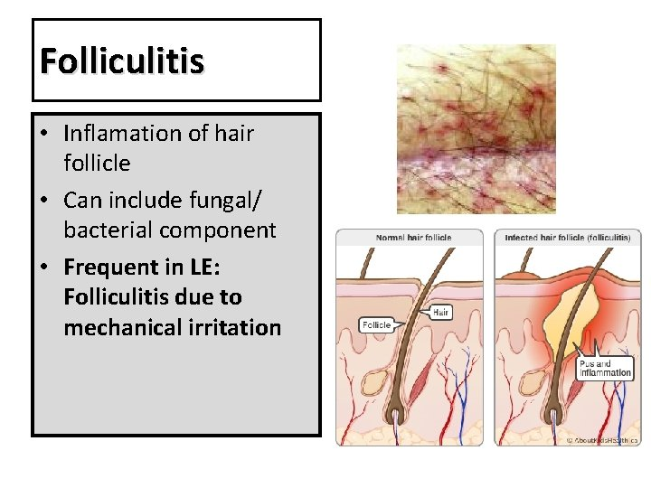Folliculitis • Inflamation of hair follicle • Can include fungal/ bacterial component • Frequent