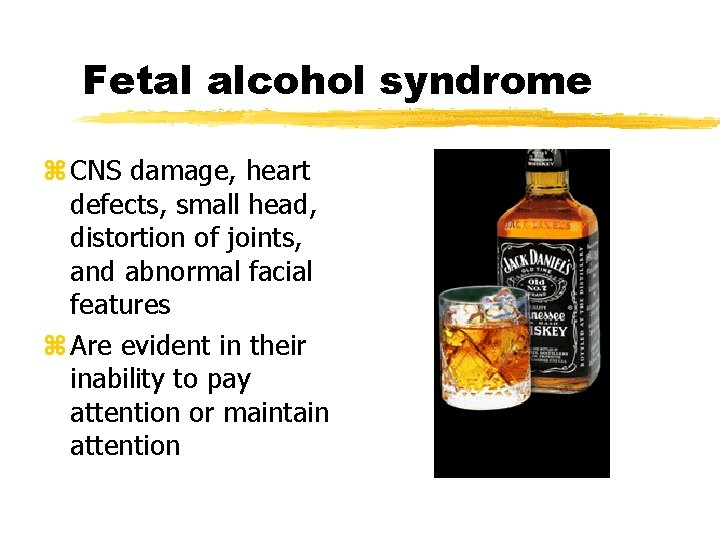 Fetal alcohol syndrome z CNS damage, heart defects, small head, distortion of joints, and