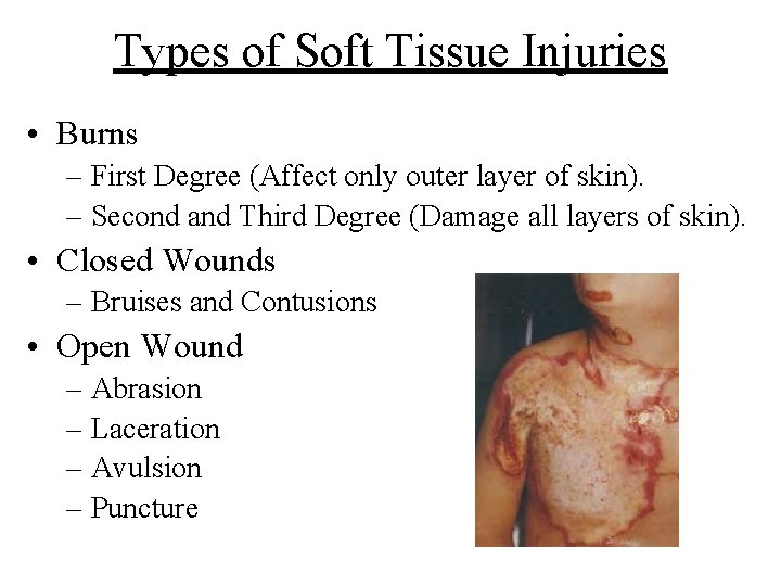 Types of Soft Tissue Injuries • Burns – First Degree (Affect only outer layer