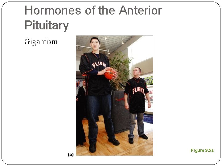 Hormones of the Anterior Pituitary Gigantism Figure 9. 5 a
