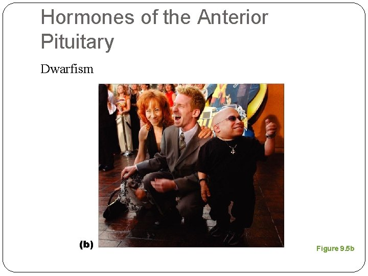 Hormones of the Anterior Pituitary Dwarfism Figure 9. 5 b