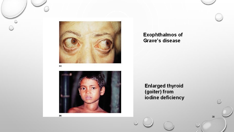 Exophthalmos of Grave's disease Enlarged thyroid (goiter) from iodine deficiency 38