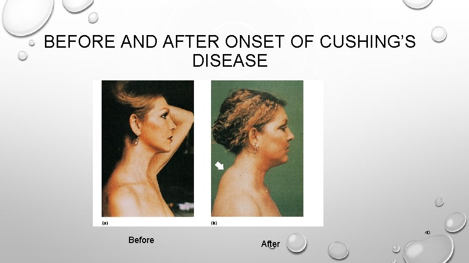 BEFORE AND AFTER ONSET OF CUSHING'S DISEASE Before 40 After