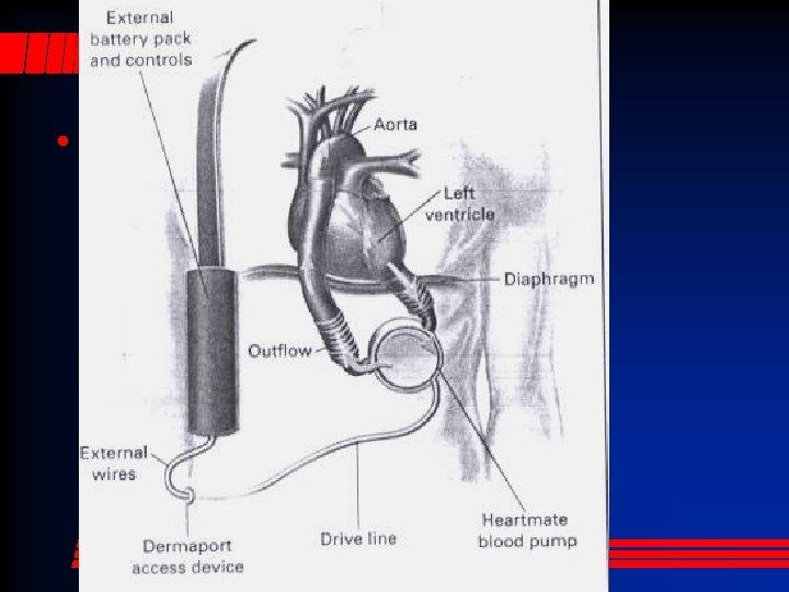 Centrifugal LVAS • The patient has no pulse!