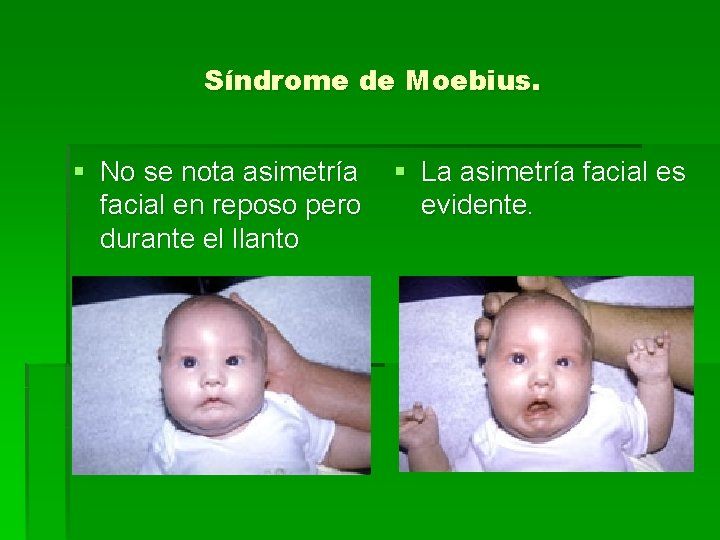 Síndrome de Moebius. § No se nota asimetría facial en reposo pero durante el