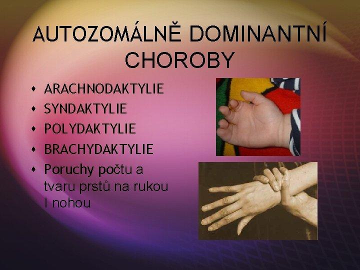 Brachydaktylie MOOCI. Brachydaktylie