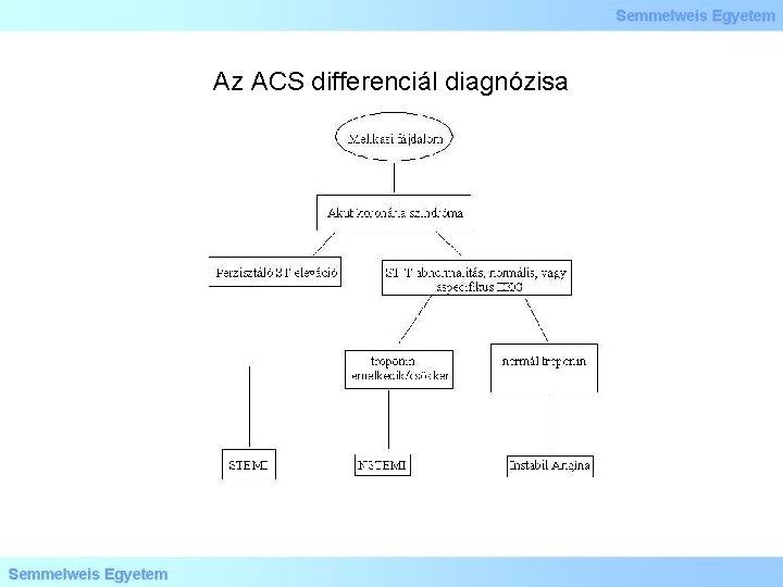 Az ACS differenciál diagnózisa