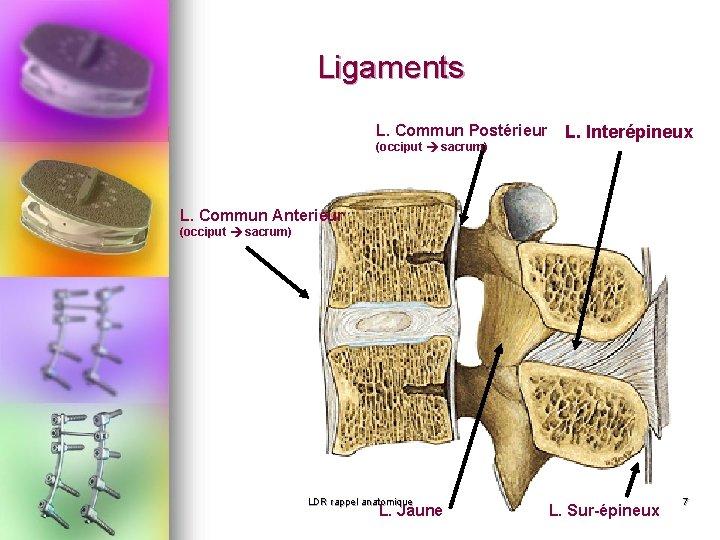Ligaments L. Commun Postérieur (occiput sacrum) L. Interépineux L. Commun Anterieur (occiput sacrum) LDR