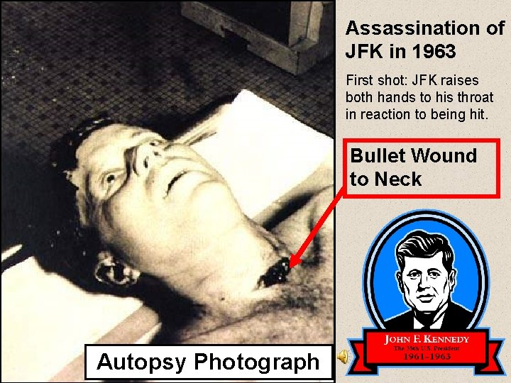 Assassination of JFK in 1963 First shot: JFK raises both hands to his throat