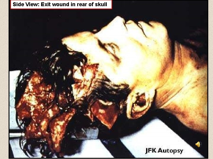 Side View: Exit wound in rear of skull
