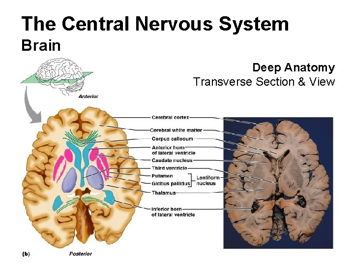 The Central Nervous System Brain Deep Anatomy Transverse Section & View