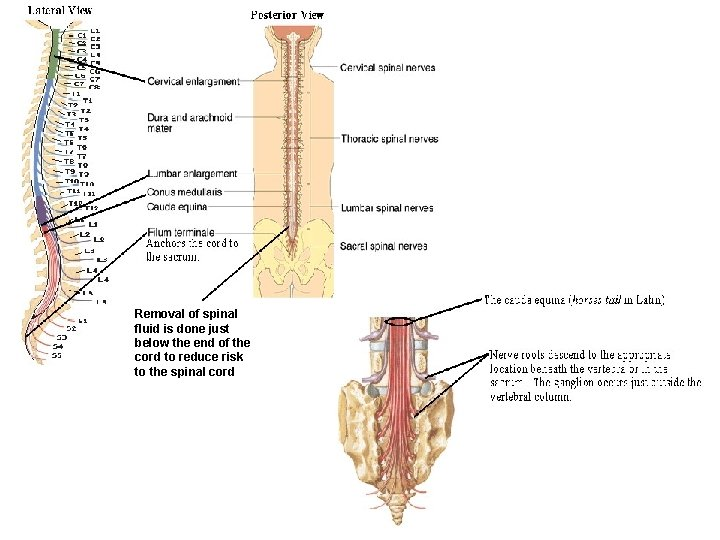 Removal of spinal fluid is done just below the end of the cord to