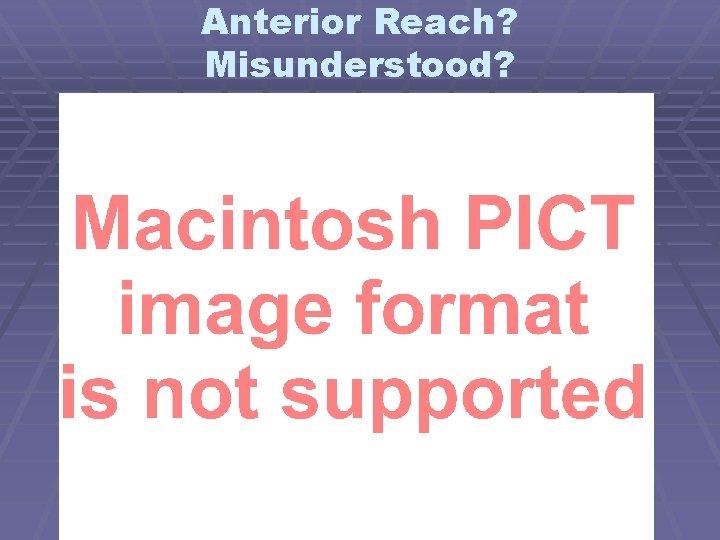 Anterior Reach? Misunderstood?