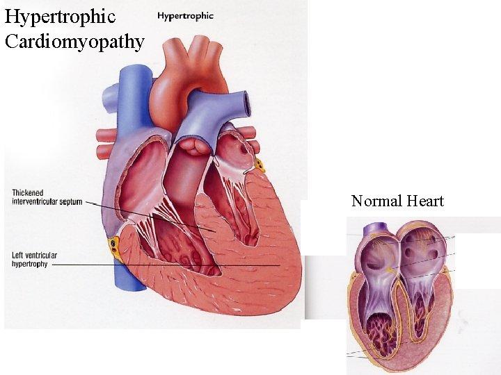 Hypertrophic Cardiomyopathy Normal Heart