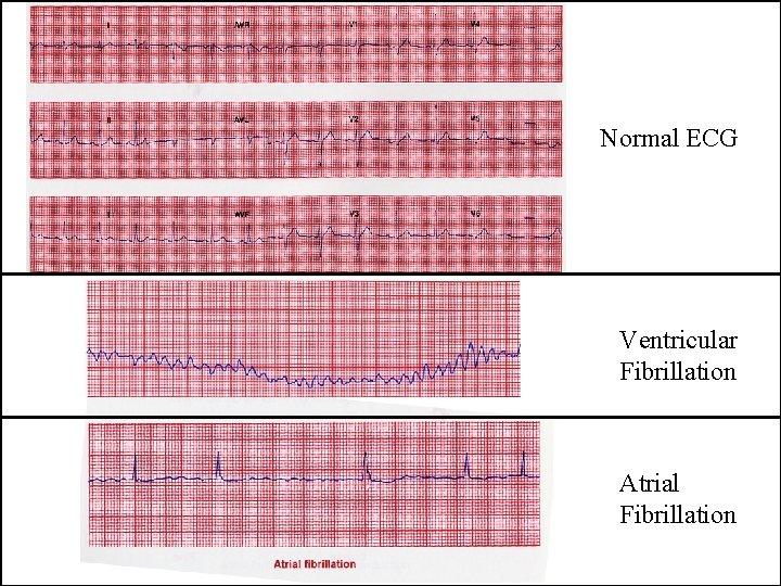 Normal ECG Ventricular Fibrillation Atrial Fibrillation
