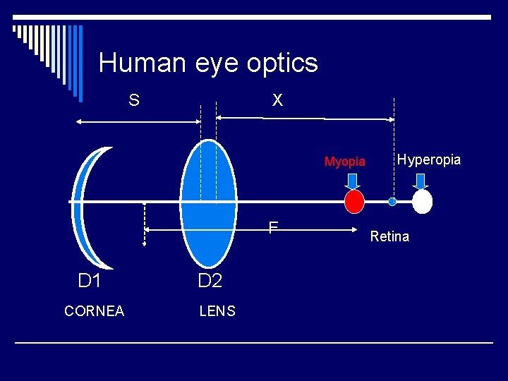 myopia 2 hyperopia