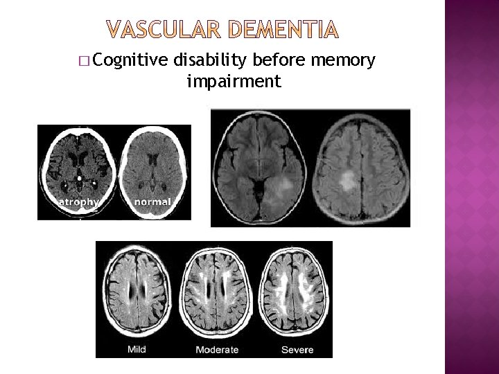� Cognitive disability before memory impairment