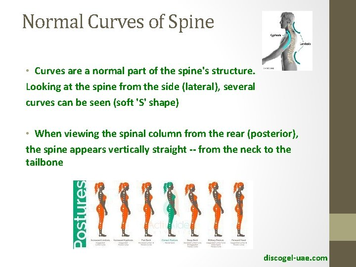 Normal Curves of Spine • Curves are a normal part of the spine's structure.