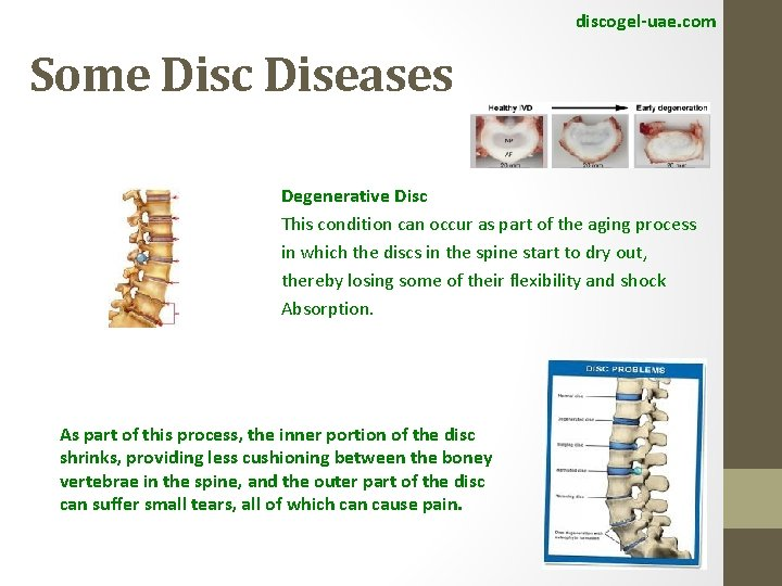 discogel-uae. com Some Disc Diseases Degenerative Disc This condition can occur as part of