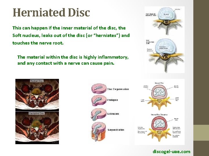 Herniated Disc This can happen if the inner material of the disc, the Soft