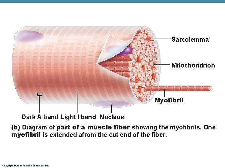 Sarcolemma Mitochondrion Myofibril Dark A band Light I band Nucleus (b) Diagram of part