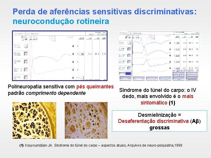 Perda de aferências sensitivas discriminativas: neurocondução rotineira Polineuropatia sensitiva com pés queimantes padrão comprimento