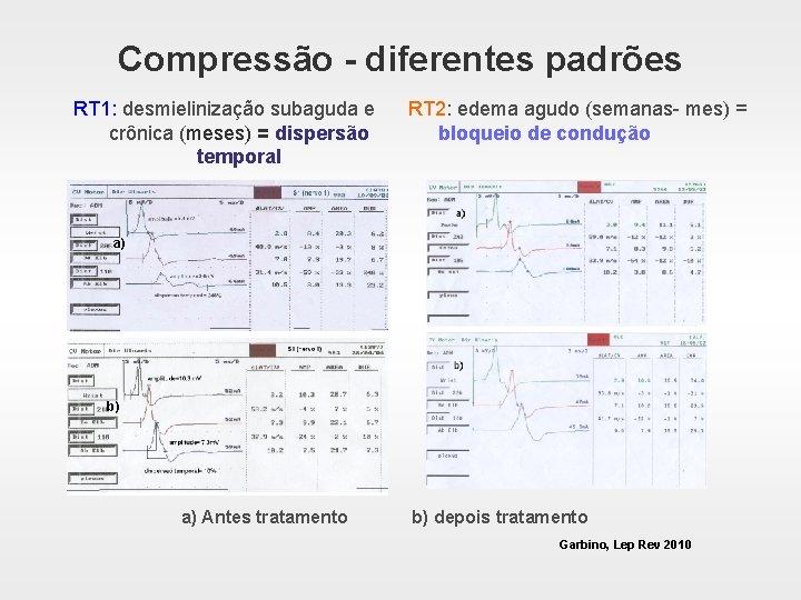 Compressão - diferentes padrões RT 1: desmielinização subaguda e crônica (meses) = dispersão temporal