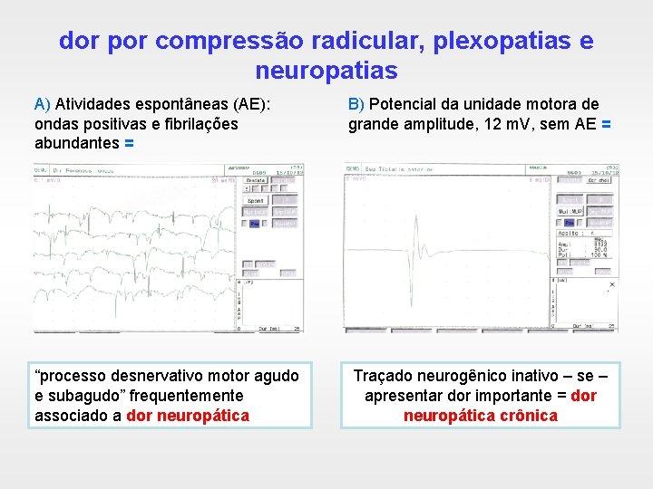 dor por compressão radicular, plexopatias e neuropatias A) Atividades espontâneas (AE): ondas positivas e