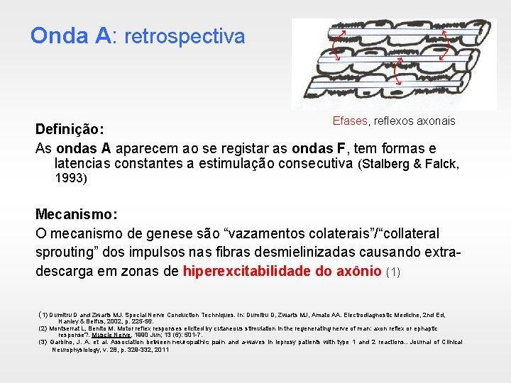 Onda A: retrospectiva Efases, reflexos axonais Definição: As ondas A aparecem ao se registar