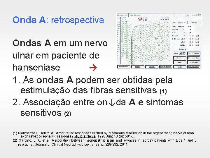 Onda A: retrospectiva ↓ Ondas A em um nervo ulnar em paciente de hanseniase