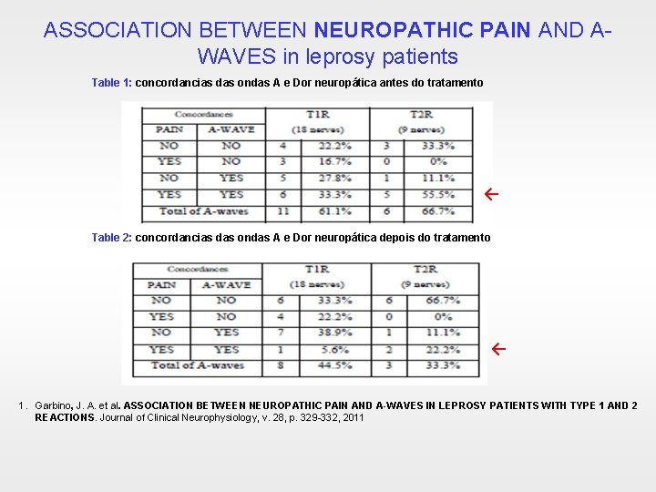 ASSOCIATION BETWEEN NEUROPATHIC PAIN AND AWAVES in leprosy patients Table 1: concordancias das ondas