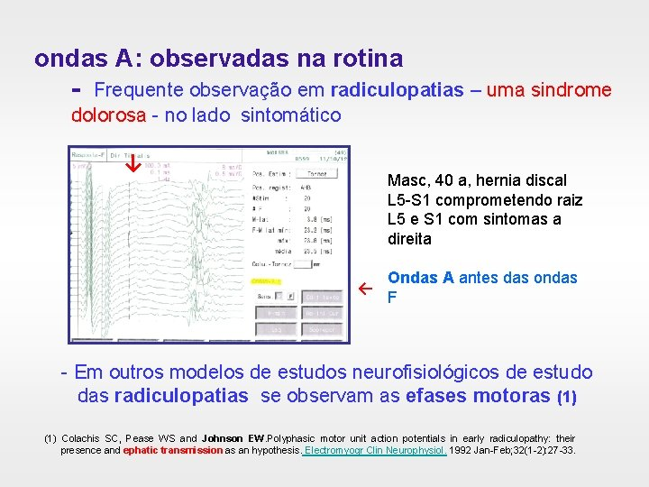 ondas A: observadas na rotina - Frequente observação em radiculopatias – uma sindrome dolorosa