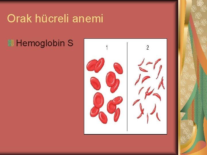 Orak hücreli anemi Hemoglobin S