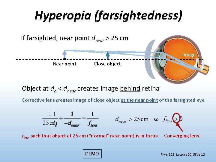 Hyperopia 1 25 - metalnews.hu