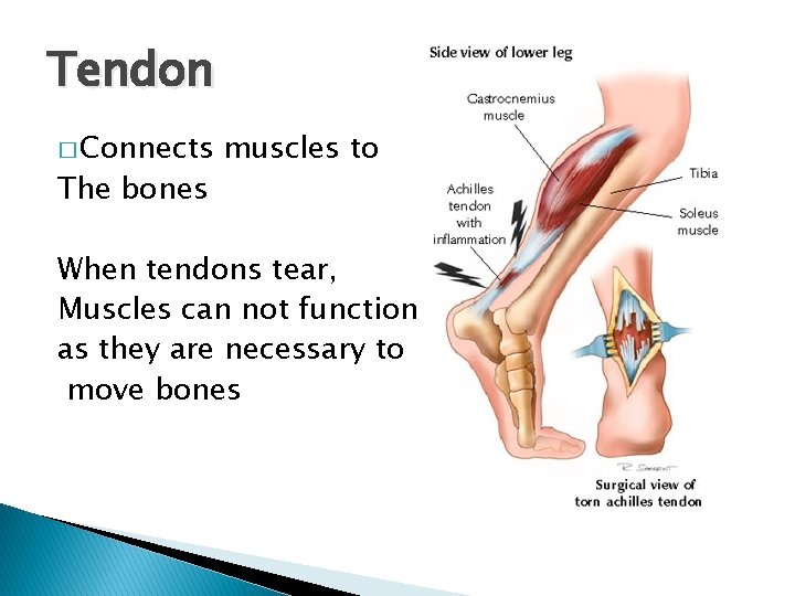 Tendon � Connects The bones muscles to When tendons tear, Muscles can not function