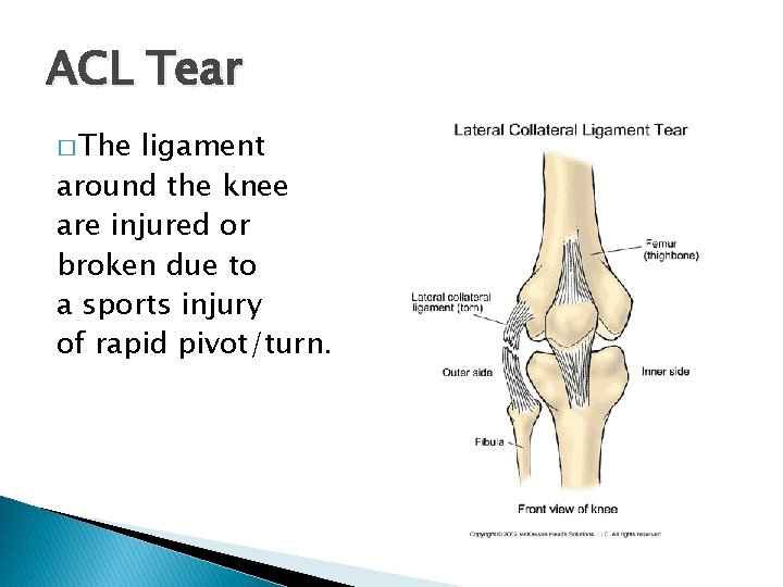 ACL Tear � The ligament around the knee are injured or broken due to