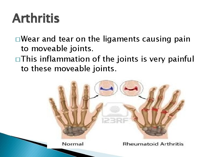 Arthritis � Wear and tear on the ligaments causing pain to moveable joints. �