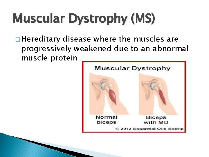 Muscular Dystrophy (MS) � Hereditary disease where the muscles are progressively weakened due to