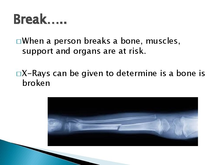 Break…. . � When a person breaks a bone, muscles, support and organs are