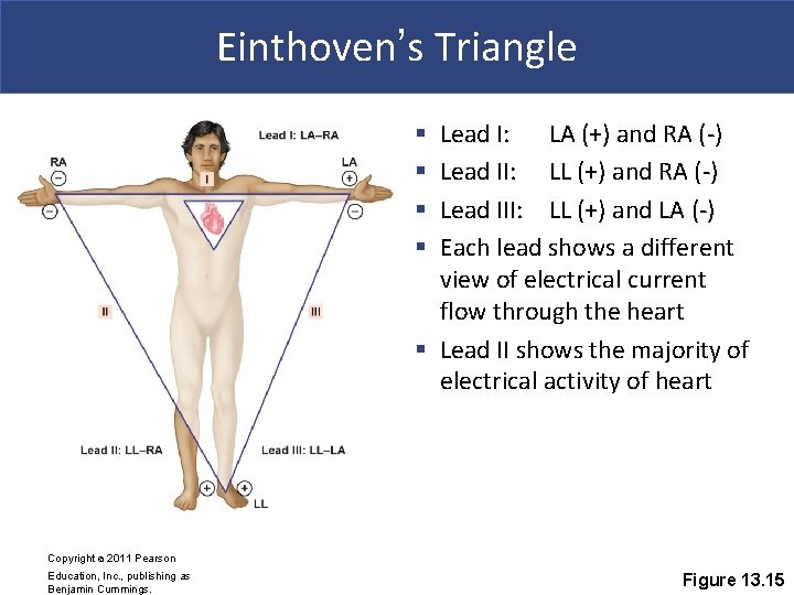Einthoven's Triangle Lead I: LA (+) and RA (-) Lead II: LL (+) and