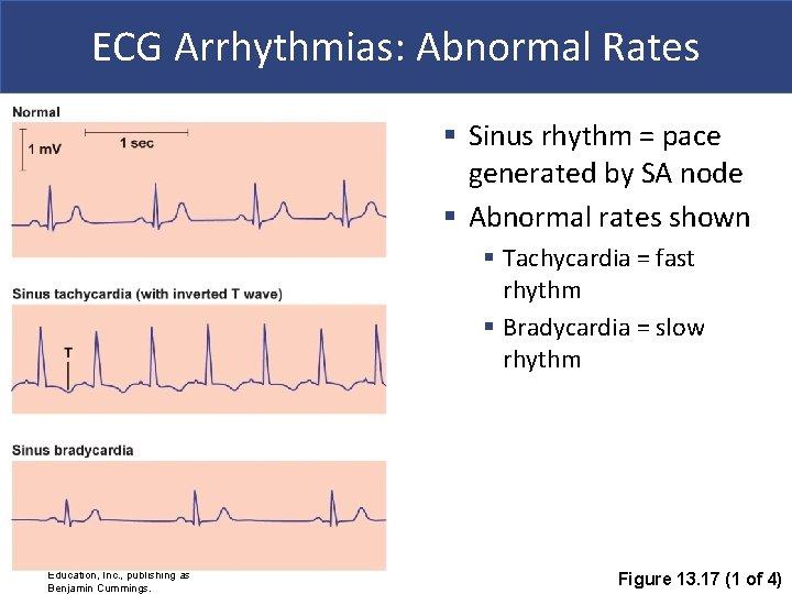 ECG Arrhythmias: Abnormal Rates § Sinus rhythm = pace generated by SA node §