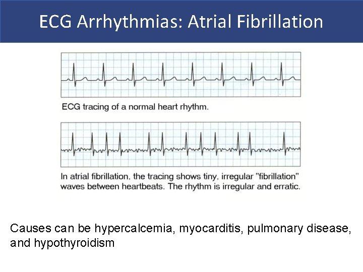 ECG Arrhythmias: Atrial Fibrillation Causes can be hypercalcemia, myocarditis, pulmonary disease, and hypothyroidism